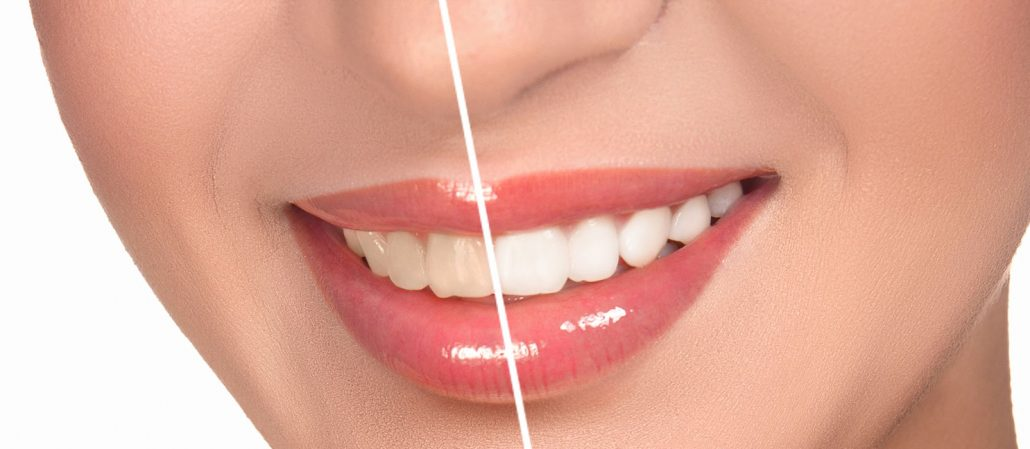 FAQs About Teeth Whitening